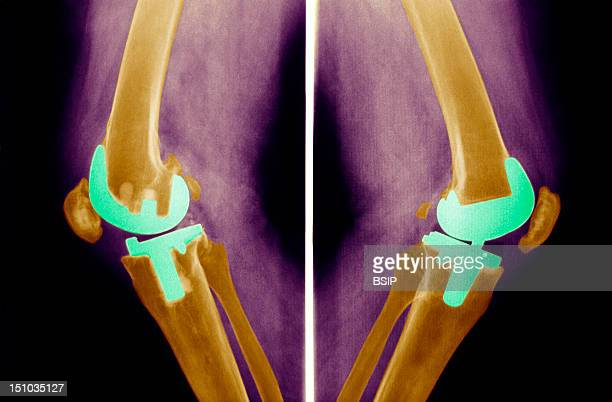 Knee Prosthesis X Ray