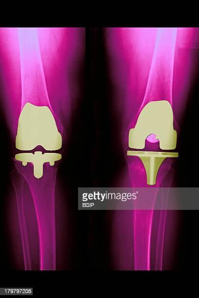 Knee Prosthesis XRay