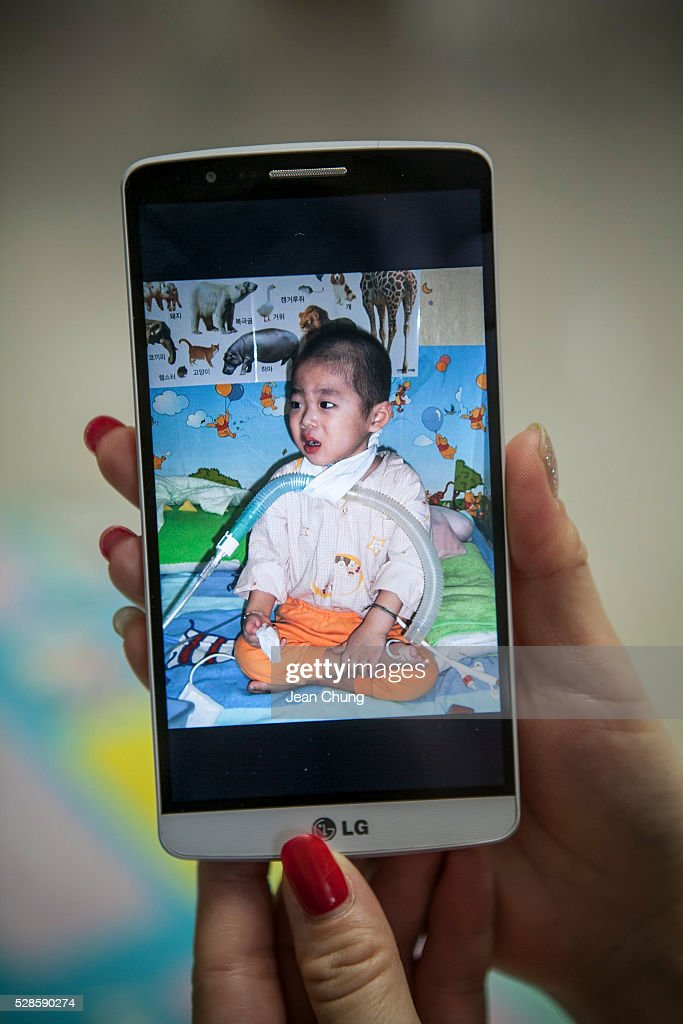 Kwon Mi-ae, mother of Lim Seong-joon, 13, who is suffering from chronic lung disease, shows the photo on her phoneof Seong-joon when he was discharged from a hospital with a tube secured to his neck with a handkerchief in 2005, on May 6, 2016 in Yongin, South Korea. His mother bought a humidifier sterilizer called 'Oxy Humidifier on Duty' back in 2003, and used the product with a humidifier for more than a year, subsequently damaging the lungs of Seong-joon. Seong-joon has gone through operations and now is living off of an oxygen tank 24 hours a day. His mother, Kwon Mi-ae, said that she thought of killing herself many times, but decided to live for him. Beginning in 2001, Reckitt Benckiser Korea (known as Oxy prior to 2014) used Polyhexamethylene guanidine (PHMG) in a humidifier sterilizer product called Oxy Ssak Ssak; the ingredient was dropped in 2011 when the Korea Centers for Disease Control and Prevention (KCDC) published a report showing a link between the compound and lung damage and deaths. Several companies in South Korea made humidifier sterliizers with poisonous ingredients between 2001 and 2011. According to a BBC report in May 2016, about 500 people, many of them women and children, are reported to have died or been injured after inhaling these ingredients. One of the victims's fathers is visiting U.K. right now, and a few other victims's families are planning to visit the U.K. at the end of May. The U.K.-based firm Reckitt Benckiser has admitted and apologized for selling a humidifier disinfectant that killed more than 100 people in South Korea on May 2, 2016.
