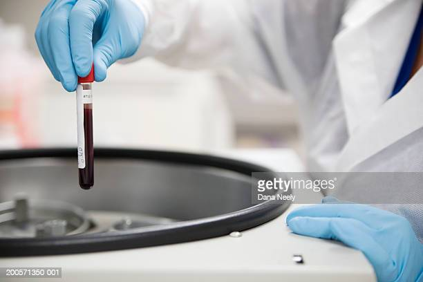 Lab technician inserting blood sample test tube into a centrifuge