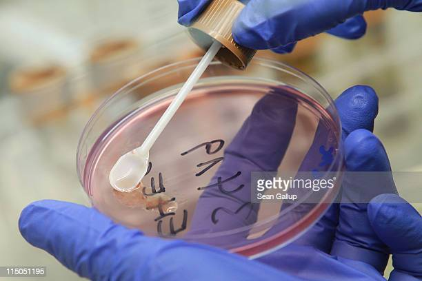A lab technician prepares a bacteria culture with a sample of stool taken from a patient possibly suffering from enterohemorrhagic E coli also known...