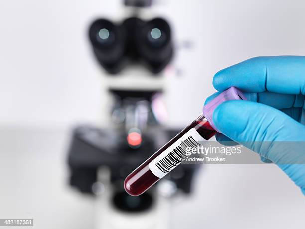 Laboratory scientist holding a blood sample with a upright compound microscope in the background