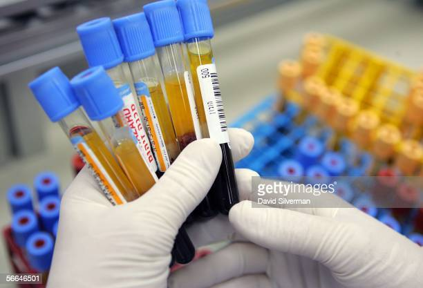 A laboratory technician checks human blood samples before placing the glass tubes on an automated testing line at the Maccabi Health Services HMO...