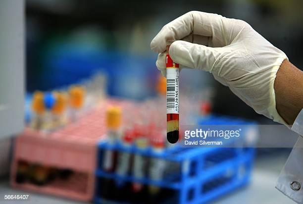A laboratory technician picks up a test tube with a human blood sample at the Maccabi Health Services HMO central laboratory January 22 2006 in Nes...
