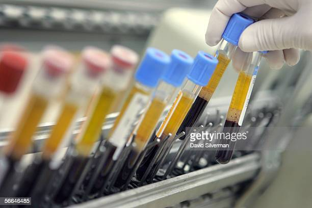A laboratory technician places human blood samples on an automated testing line at the Maccabi Health Services HMO central testing laboratory January...