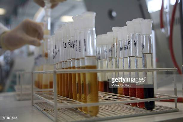 A laboratory technician works at the Doping Control Laboratory of the Biochemical Institute at the University for Sports on August 19 2008 in Cologne...