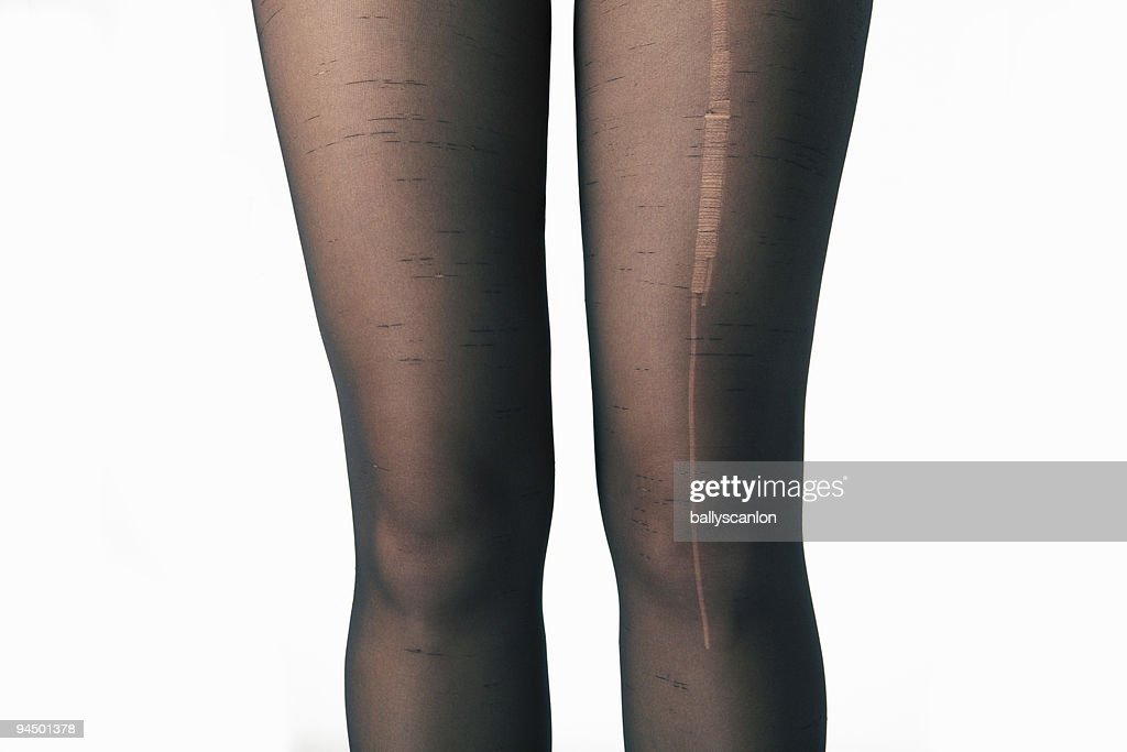 Ladder In Woman's Tights. : Stock Photo