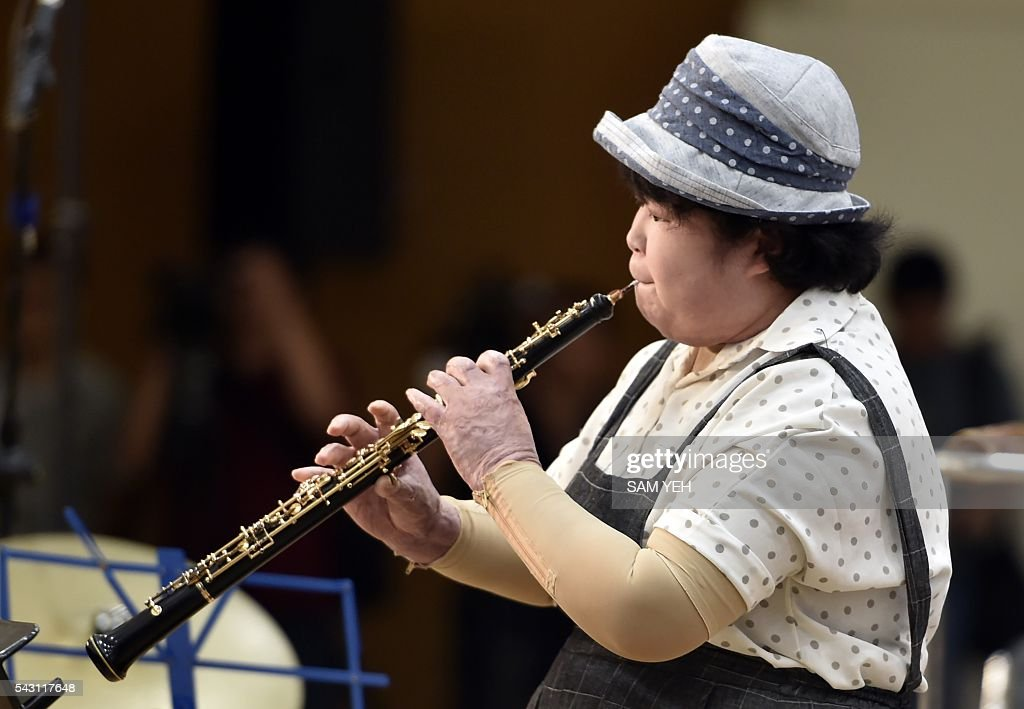 Lai Si-yu, a woman injured in the water park explosion last year, performs during a music concert to mark the first anniversary of the accident in Taipei on June 26, 2016. Taiwan commemorated a water park explosion that left 15 dead and hundreds injured with a memorial concert on the eve of its one-year anniversary as victims and their relatives demanded justice after only a party organiser was sentenced over the incident. The accident happened in June 2015 at the Formosa Fun Coast water park near Taipei, when clouds of multi-coloured corn starch sprayed on revellers at a 'colour party' ignited after heat from stage lights triggered a blast that ripped through the crowd. / AFP / SAM YEH