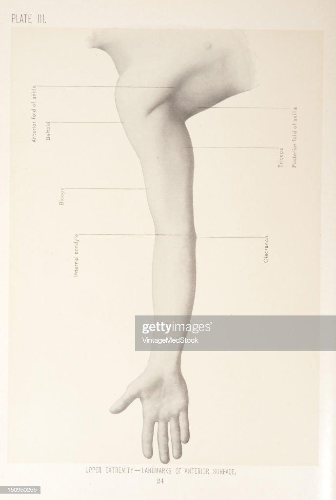 Landmarks of the anterior surface include biceps deltoid anterior fold of axilla internal condyle olecranon triceps posterior fold of axilla 1899...