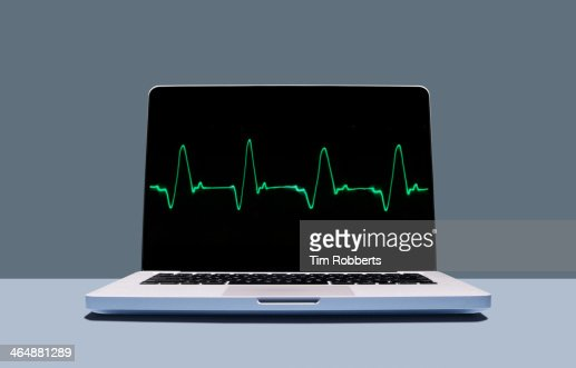 Laptop with healthy heartbeat pulse.