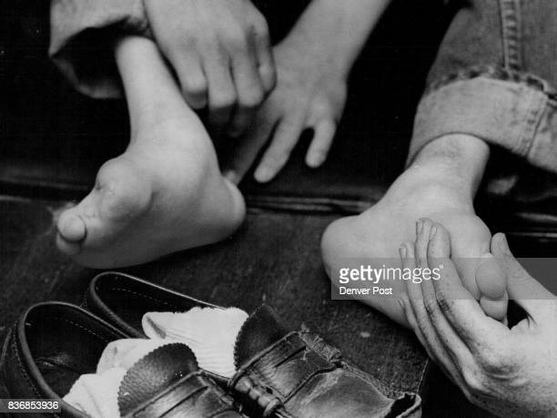 Laradon Children Receive Foot Care A child's club foot is examined Thursday during a volunteer visit to Laradon Hall E 51st Ave and Lincoln St by Dr...
