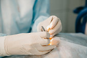 Laser correction for vision. Ophthalmology surgery for eyes.