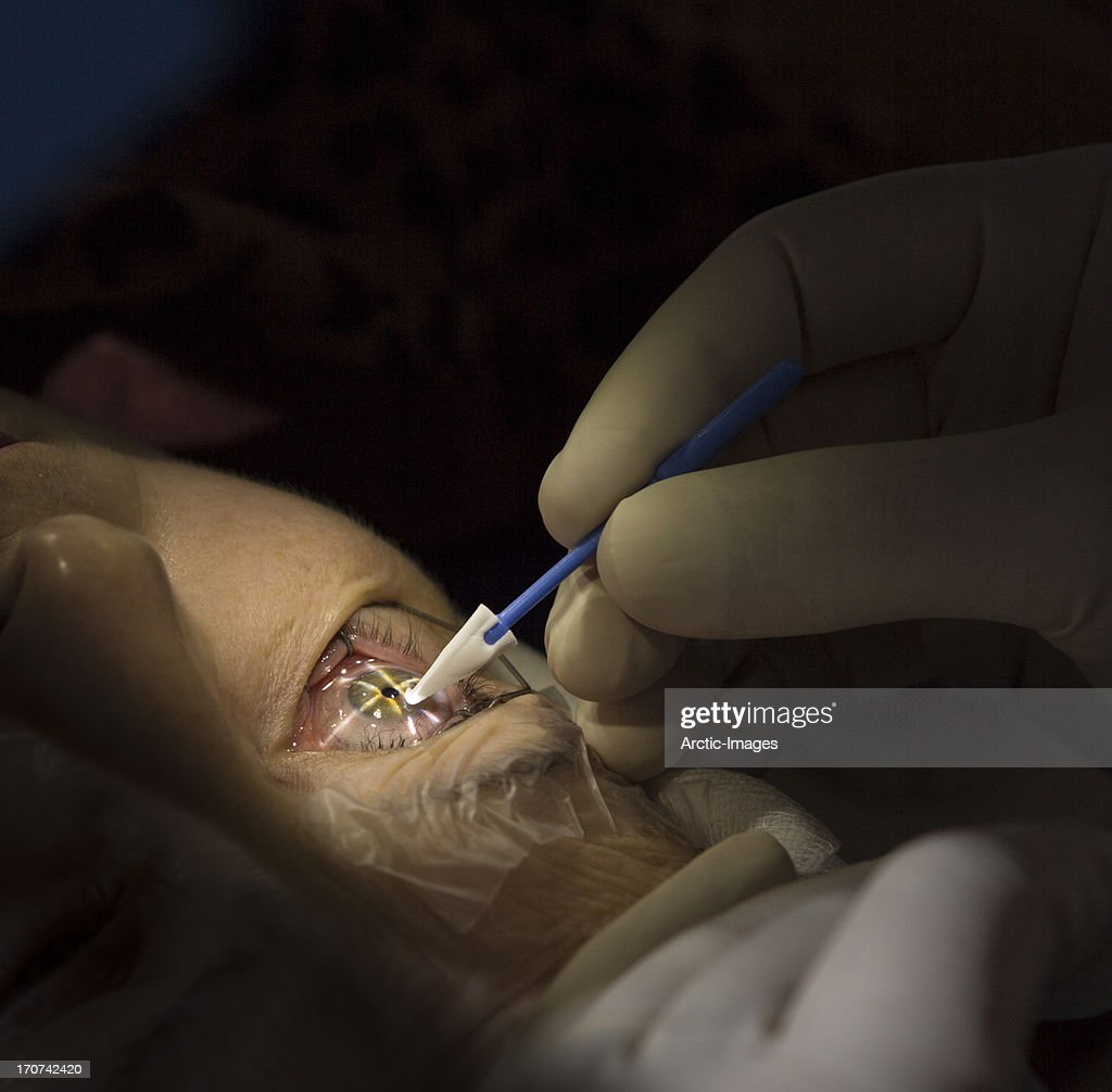 Laser eye surgery : Stock Photo