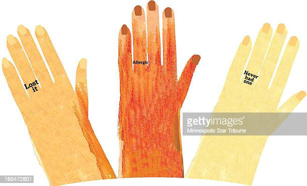 Laurie Harker color illustration of three ladies' hands without wedding rings for one reason or another 'Lost it Allergic and Never had one'