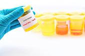 Urine sample for lead (Pb) test
