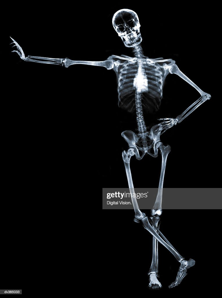 Leaning skeleton against black : Stock Photo