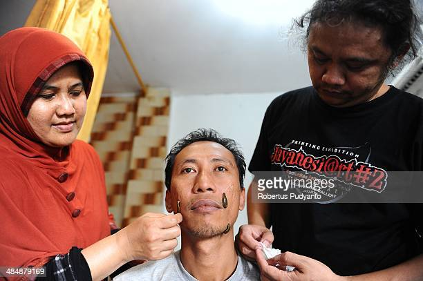 Leech therapist Sri Oentarti and Asep Nugraha treats a patients with leech in their clinic on April 15 2014 in Surabaya Indonesia Hirudo medicinalis...