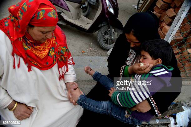 Leeches suck blood from a foot of a child after a traditional health worker uses leeches to suck blood as part of a treatment at Hazratbal on the...