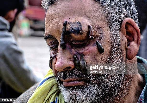 Leeches suck blood from the face of a Kashmiri patient on March 21 in Srinagar the summer capital of Indian administered Kashmir India Nowruz the...