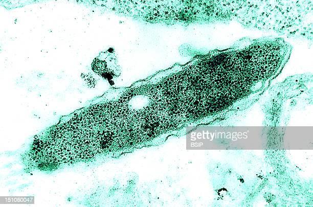 Legionella Pneumophila Colorized Tem Approximately X 129 500 Cultured In An Embryonated Hen'S Egg Legionella Pneumophila Is A Gram Negative Bacillus...