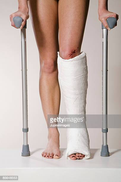 Legs of woman with cast and crutches