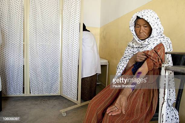 A leishmaniasis patient is treated at a free specialized clinic for leishmaniasis supported by World Health Organization October 26 2010 in Kabul...