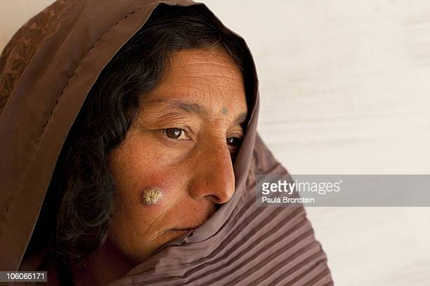 KABUL AFGHANISTAN OCTOBER 26 A leishmaniasis patient waits to be treated at a free specialized clinic for Leishmaniasis supported by World Health...