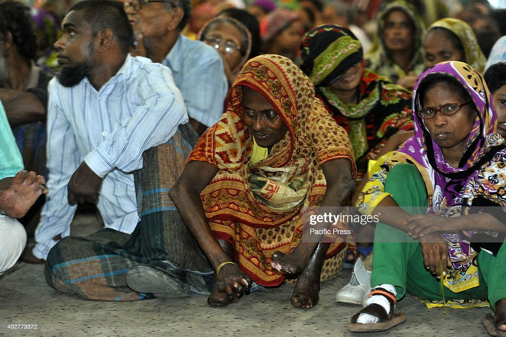 Leprosy patients wait in front of the Press Club in Dhaka for money donations from an organization before Eid Based on mission's latest survey there...