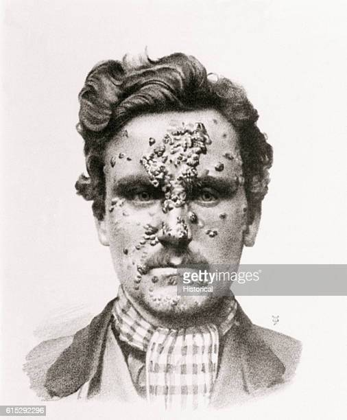 Lesions of secondary syphilis on a man's face as illustrated in Byrom Bramwell's Atlas of Clinical Medicine