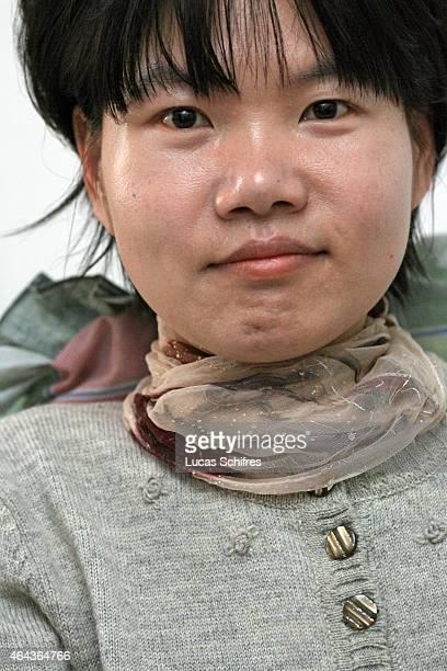 Li Yan sits in her wheelchair in her home on May 7 2007 in Yinchuan Ningxia Province China 28yearold Li Yan suffers from motor neuron disease also...