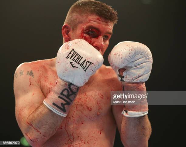 Liam Smith sustains a cut to his right eye during his fight with Liam Williams at Manchester Arena on April 8 2017 in Manchester England
