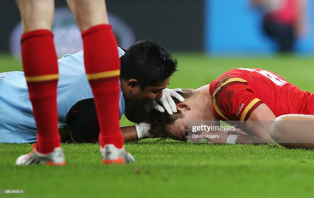 <a gi-track='captionPersonalityLinkClicked' href=/galleries/search?phrase=Liam+Williams&family=editorial&specificpeople=7852399 ng-click='$event.stopPropagation()'>Liam Williams</a> of Wales is treated for injury during the 2015 Rugby World Cup Pool A match between England and Wales at Twickenham Stadium on September 26, 2015 in London, United Kingdom.