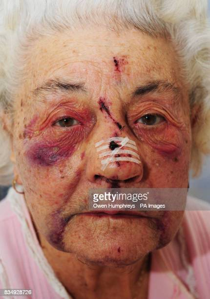 Lillian Young in Sunderland General Hospital after being mugged and beaten up for 120 near her South Shields home