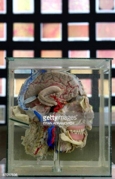 An anatomical piece consisting in a human halfhead exposing its inner organs is on display at the Museum of the Brain 03 March 2005 in Lima The...