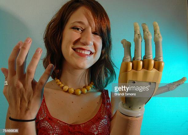 Lindsay Block who was born missing the lower part of her left arm demonstrates her new iLIMB hand described by its manufacturer as the first fully...