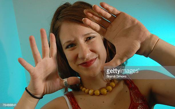 Lindsay Block who was born missing the lower part of her left arm demonstrates her new iLIMB hand here covered in a lifelike skin glove described by...