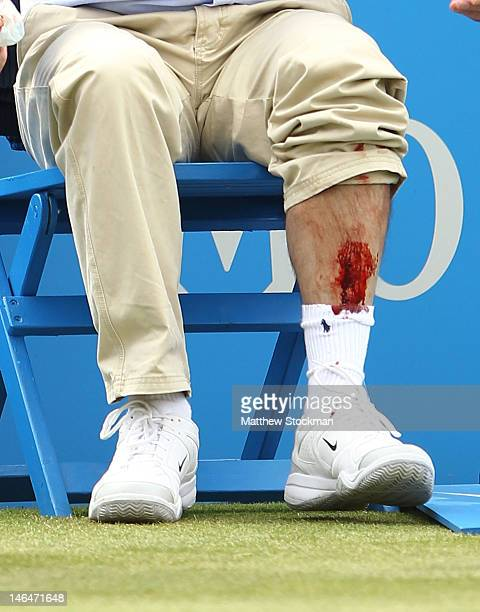 A line judge sits shocked after having his leg injured during the mens singles final round match between Marin Cilic of Croatia and David Nalbandian...
