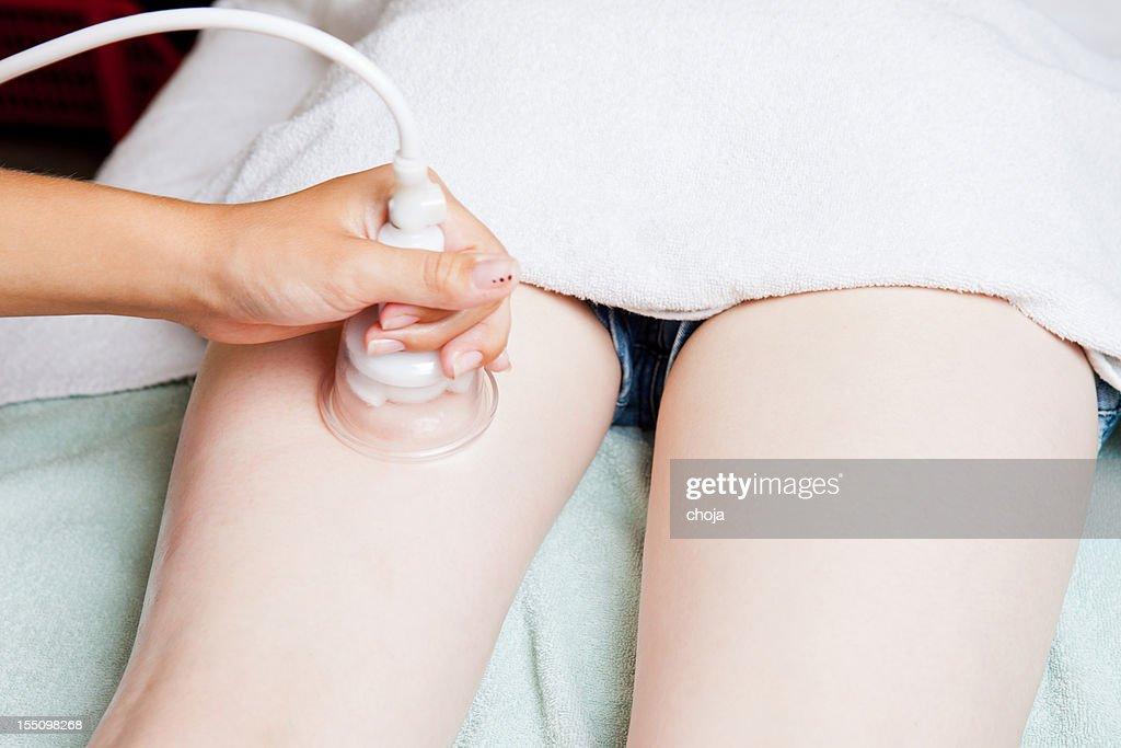 Lioposuction