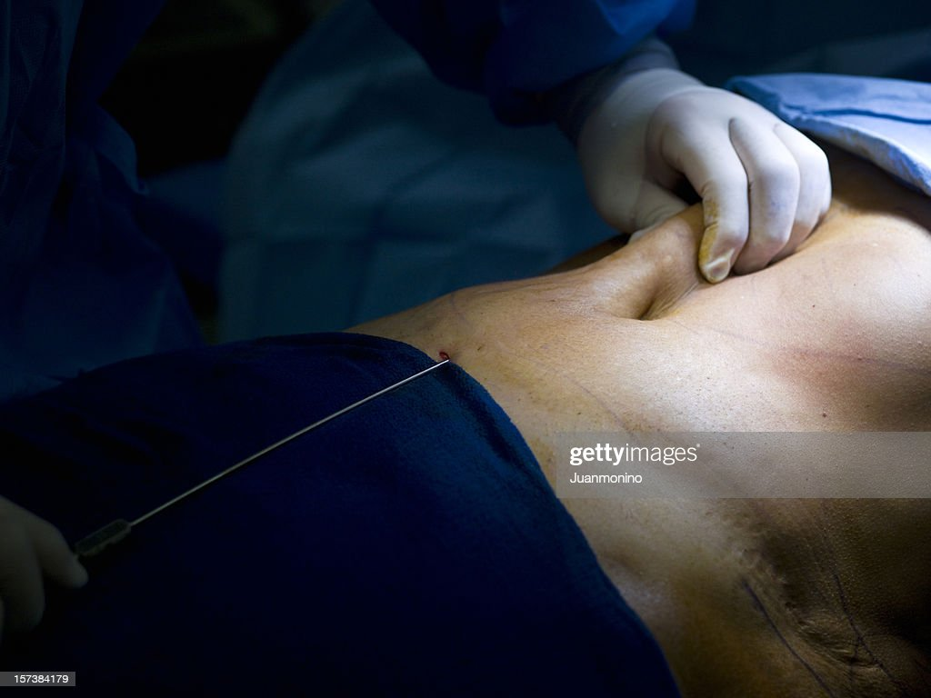 Liposuction : Stock Photo