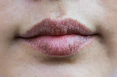 Lips hypersensitive to dry lips, Lips allergic to chemicals , Black lips