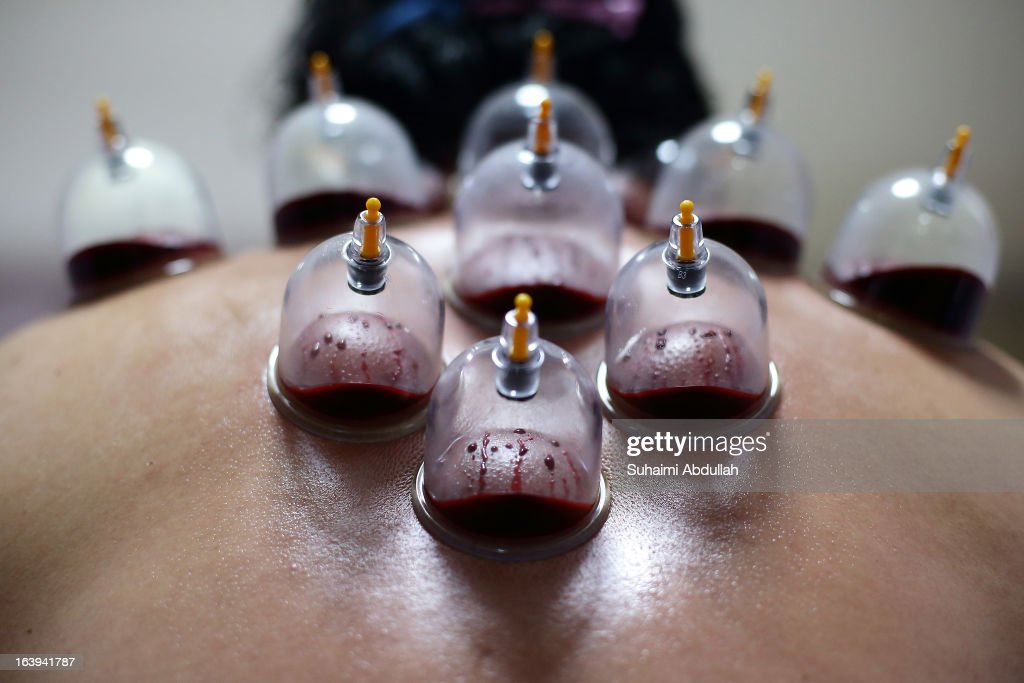 Liquid and congealed blood are seen inside the cups during a blood cupping session on March 18, 2013 in Singapore. Cupping therapy dates back to ancient Chinese, Egyptian and Middle Eastern cultures and is used to treat a variety of medical conditions ranging from skin problems, blood disorders, fertility disorders and stroke. The process involves pricking the skin with needles before immediately applying a cup on top to draw congealed blood. Although the treatment is used widely throughout Asia and the Middle East, western medical groups remain sceptical of the health claims made by supporters and practitioners of the therapy.