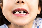 Little girl showing her teeth. Gap