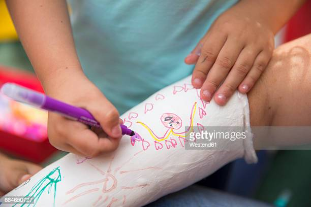 Little girls painting her mothers plaster arm