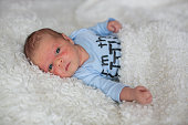 Little newborn baby looking, baby with skin rash, child dermatitis symptom problem rash, newborn suffering atopic symptom on skin. concept child health