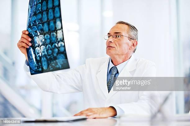 見脳の MRI