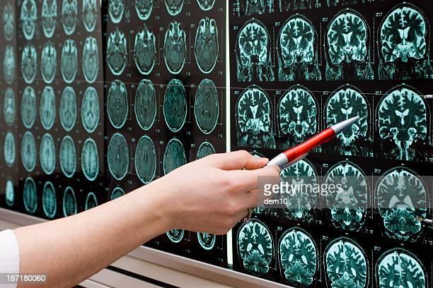 Gehirn in MRI suchen