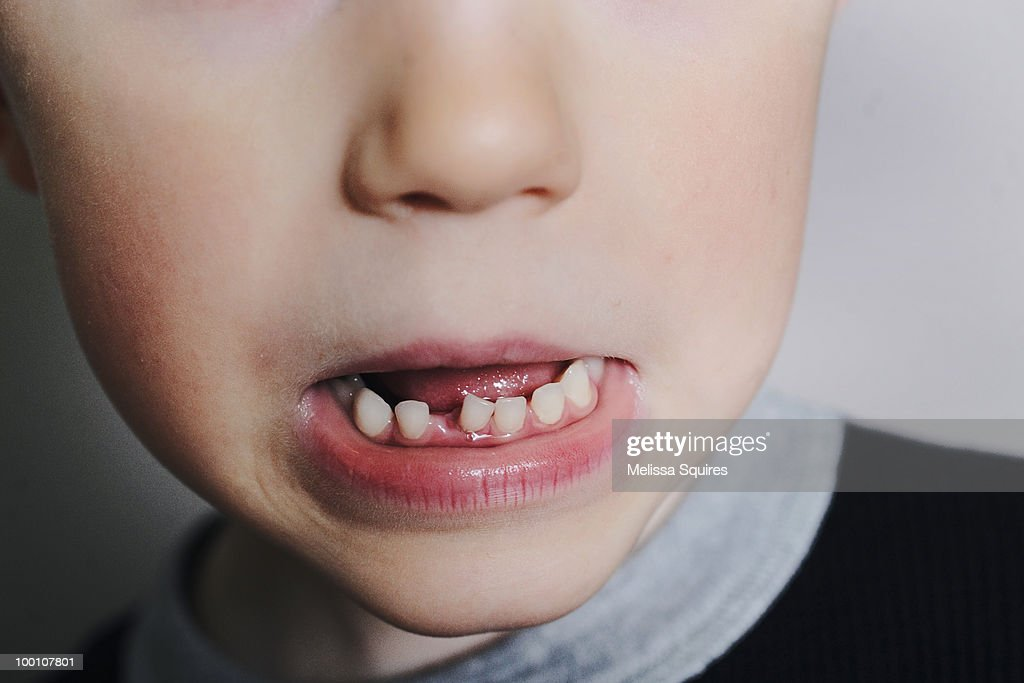 Loose tooth : Stock Photo