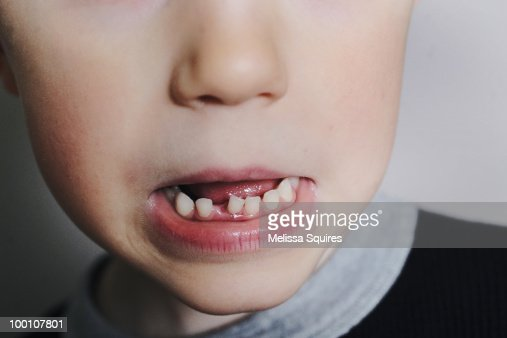 Loose tooth : Foto de stock
