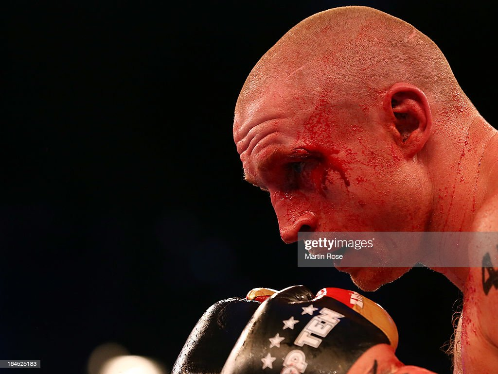 Lukas Konecny of Czech Republic bleeds during the Middleweight fight at Getec Arena on March 23, 2013 in Magdeburg, Germany.