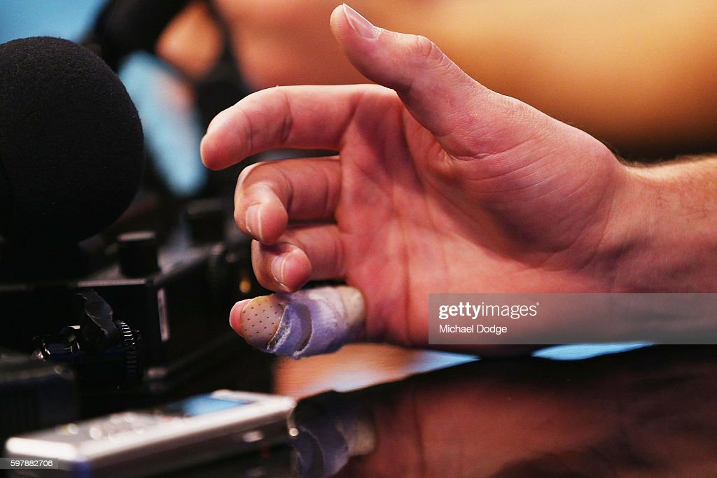 Luke Hodge of the Hawthorn Hawks protects his taped up finger as he speaks to the media during an AFL Finals media opportunity at Fox Studios on...